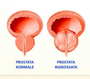post it  prostata
